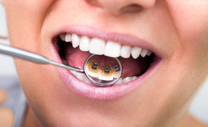 Lingual Braces Are A New And Invisible Way To Straigten Your Teeth. Lingual  Refers To The Inner Tooth Surface Next To Your Tongue, And Thatu0027s Where  Lingual ...