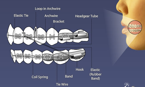 braces-diagram