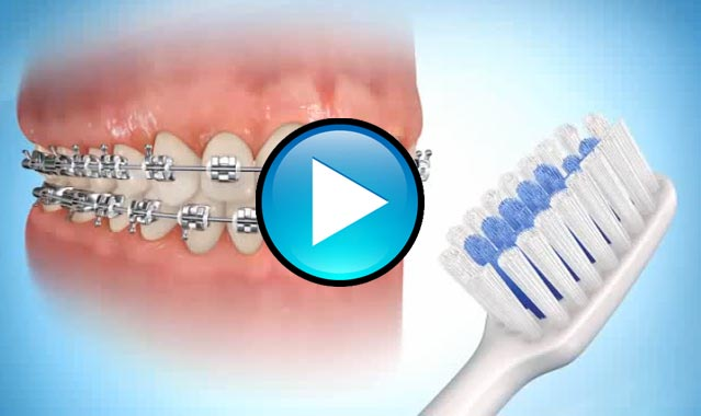 Brushing Techniques with Braces